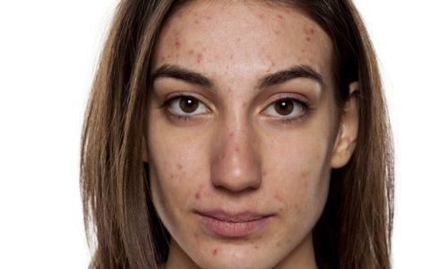 ACNÉ comment retrouver une belle peau